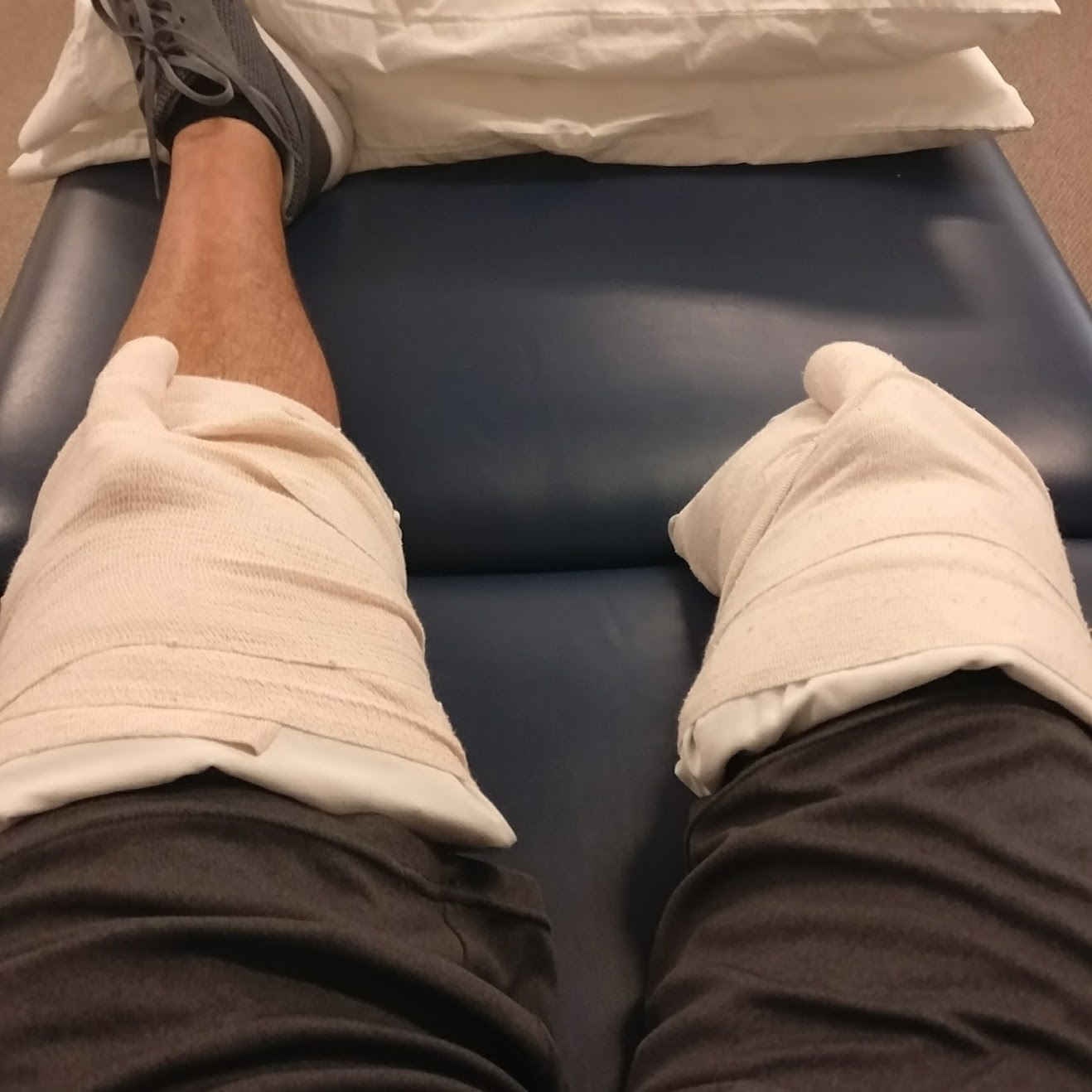 What to expect as a new leg amputee